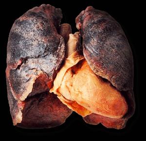 Nikotinoff - sản phẩm có tốt không? Là thuốc gì? Có hiệu quả không? Original