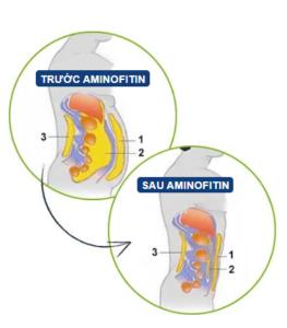 AminoFitin - Việt nam - bao nhiêu tiền? Giá rẻ