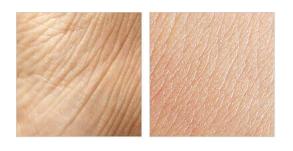 Nolatreve Skin - Giá rẻ - Việt nam bao nhiêu tiền?